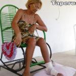 Taperuaba: Moradora de Vassouras está há 2 meses a espera de uma cirurgia