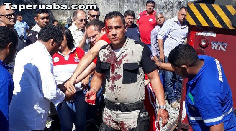 Vigilantes feridos em Fortaleza